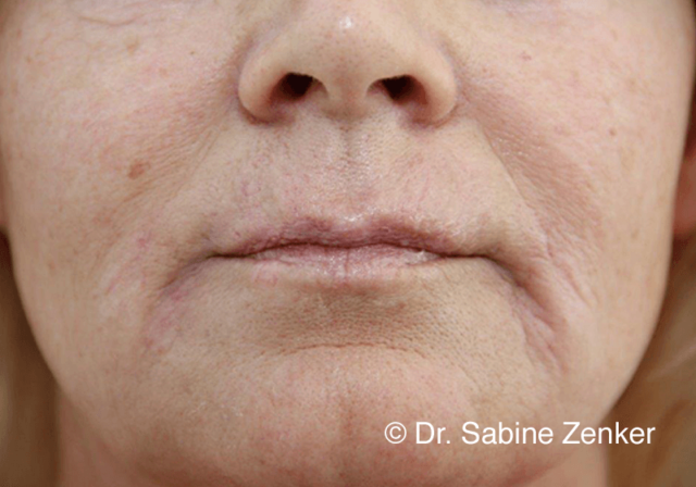 Immediately after treatment with fillers