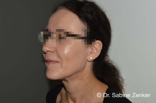Some months after treatment: fillers, absorbable sutures, injection lipolysis