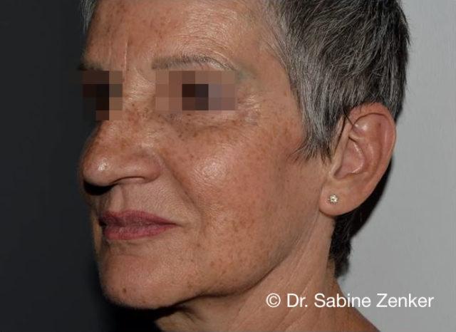 2,5 Jahre nach der Behandlung: Filler und Fadenlifting
