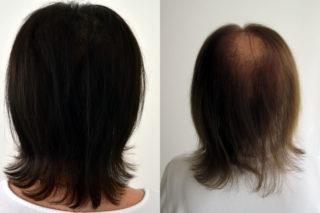 Neue Behandlungsoptionen bei starkem Haarausfall