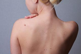 Regelmäßige Hautkrebsvorsorge