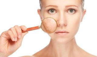 Effektive Behandlung von Pigmentflecken