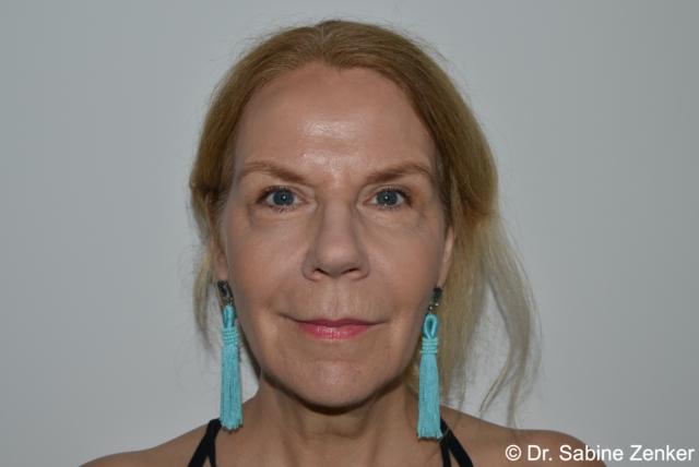 2019, 14 yrs later Non-invasive Facial Rejuvenation without surgery, (DR ZENKER 4R TECHNIQUE@)