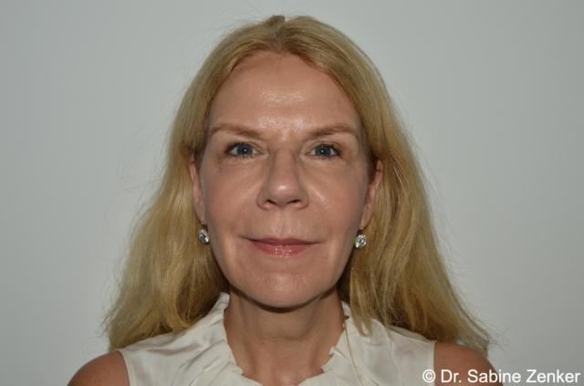 2017, 12 yrs later Non-invasive Facial Rejuvenation without surgery, (DR ZENKER 4R TECHNIQUE@)